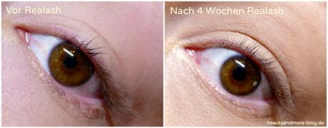 Realash Wimpernserum eyelash Enhancer Vorher Nachher 2