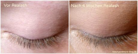 Realash Wimpernserum eyelash Enhancer Vorher Nachher