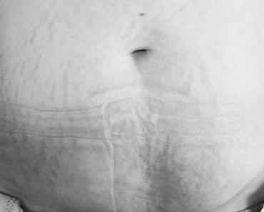 Der Körper einer Mutter – Dehnungsstreifen sind KEIN Schöhnheitsmakel!