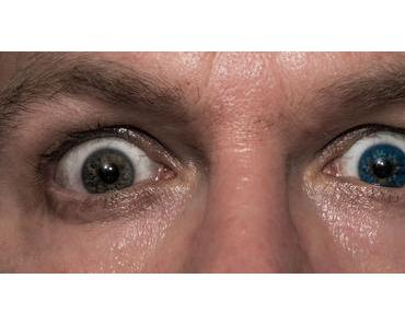 Tag der Iris-Heterochromie – der amerikanische National Different Colored Eyes Day