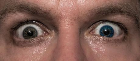 Kuriose Feiertage - 12. Juli - Tag der Iris-Heterochromie – der amerikanische National Different Colored Eyes Day (c) 2016 Sven Giese-1