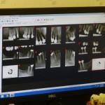 Röntgen in der Schwangerschaft