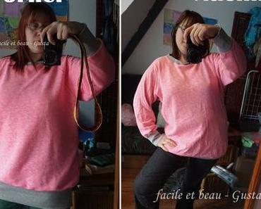 Brustverkleinerung vorher-nachher