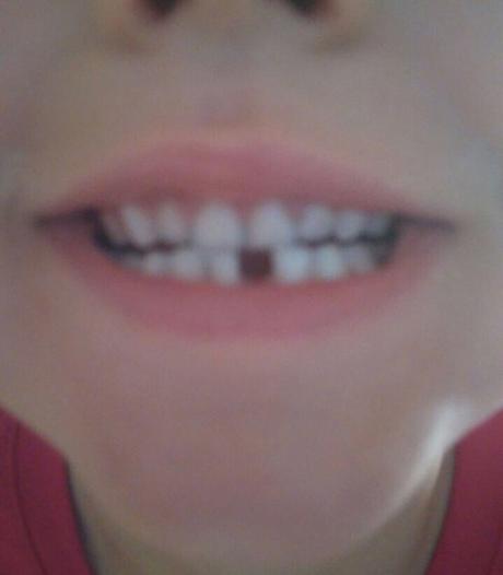 Das mit der Zahnfee