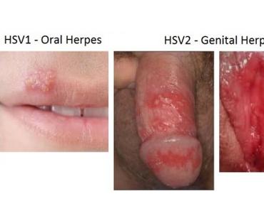 obat herpes aman untuk ibu menyusui