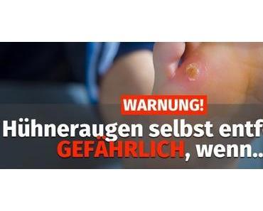 WARNUNG: Hühneraugen selbst entfernen GEFÄHRLICH, wenn…