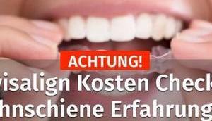 【▷】Invisalign Kosten Check 2019 Zahnschiene Erfahrungen…