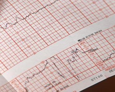 Smartwatch – So funktioniert EKG und Blutdruckmessung