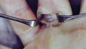 Köchleins Finger