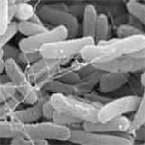 Forensischer Beweis, dass der europäische Superkeim E.coli mit Todesfolge biotechnisch geschaffen wurde
