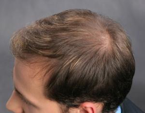 Frisuren Bei Dünnem Haar