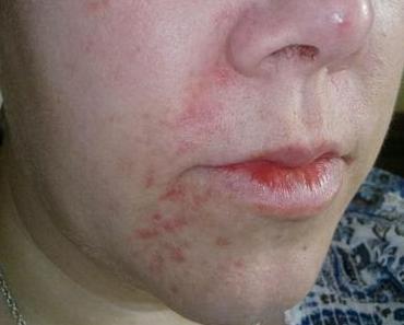 14.06.13 - [Haut] Ergebnis nach 2 Wochen mit den Hautartzprodukten