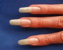 Am Fingernagel Krankheiten Erkennen