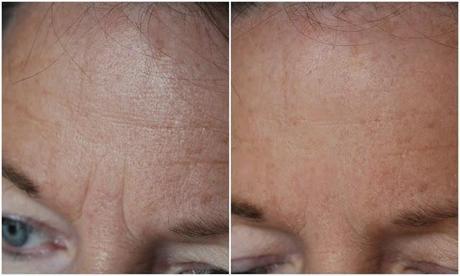 Matis die Creme mit lifting vom Effekt für die Haut um die Augen 15 ml
