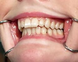 Was ist Karies und welche Zahnkrankheiten gibt es?