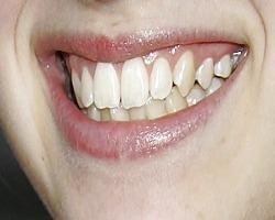 Aufbau des Zahns und warum Zahnbürste?