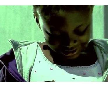 Kurzfilm: Zahn um Zahn