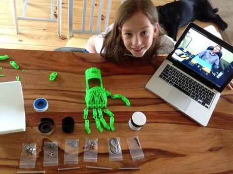 9-year-old-3D-printed-hand