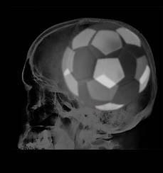 Der typische und nervige Artikel gegen die Fussball-Weltmeisterschaft